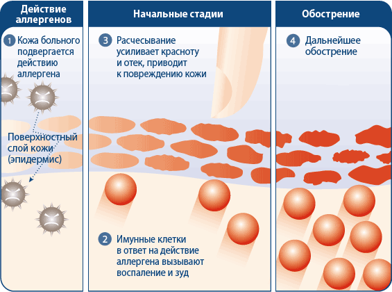 Развитие аллергических реакций