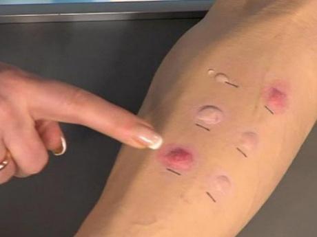 Аллергопроба покажет аллергин