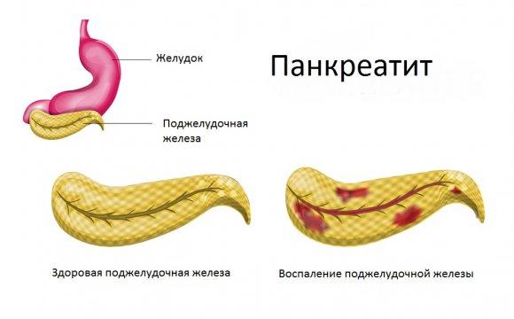 Пакреатит