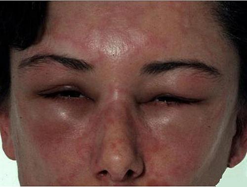 Проявления аллергии на гречку у взрослых